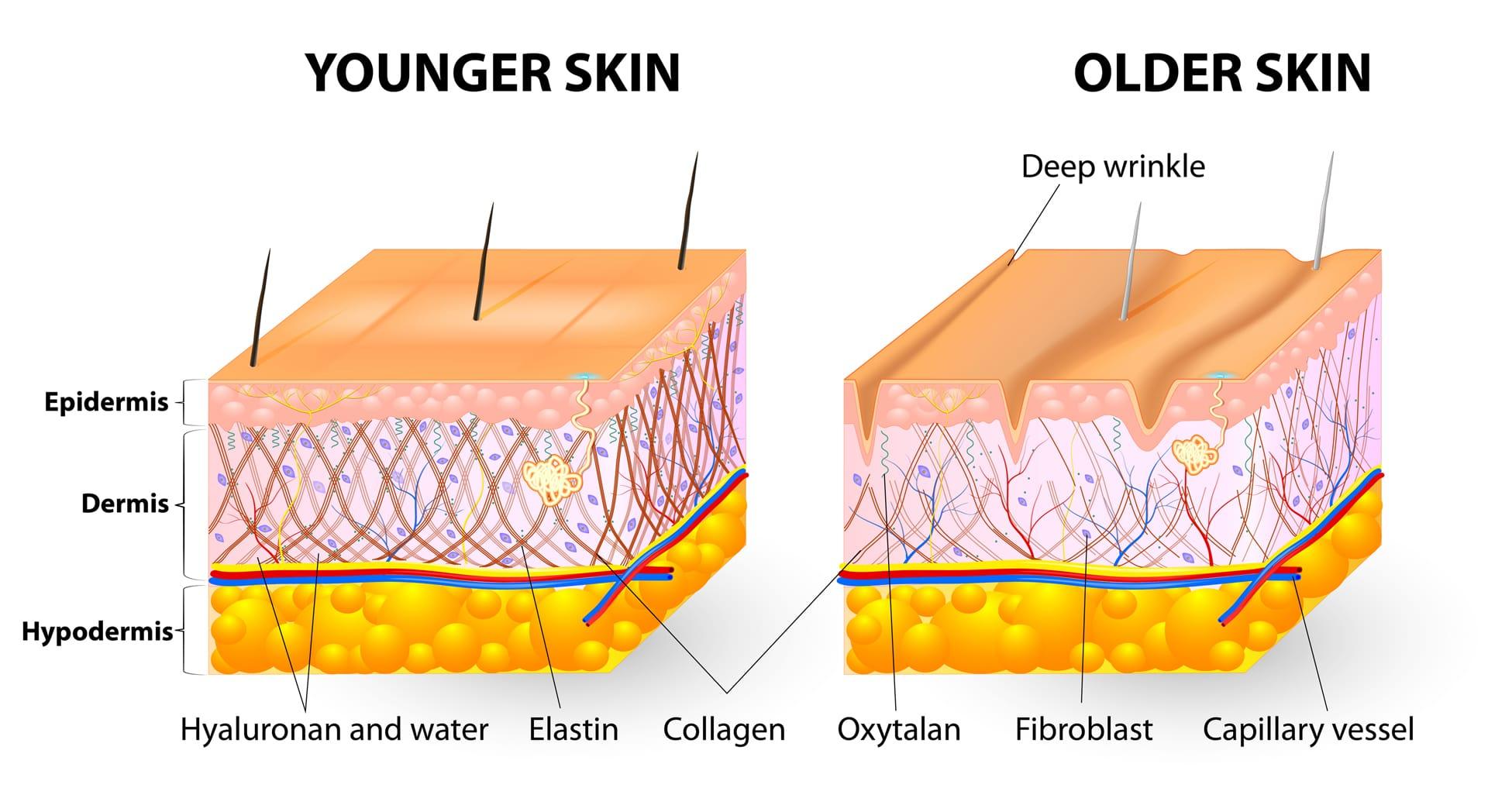 kolagen v pleti