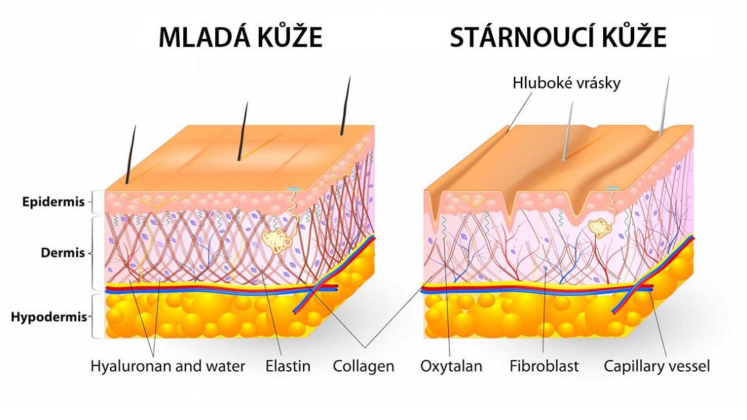 Úbytek kolagenu mladá a stárnoucí kůže