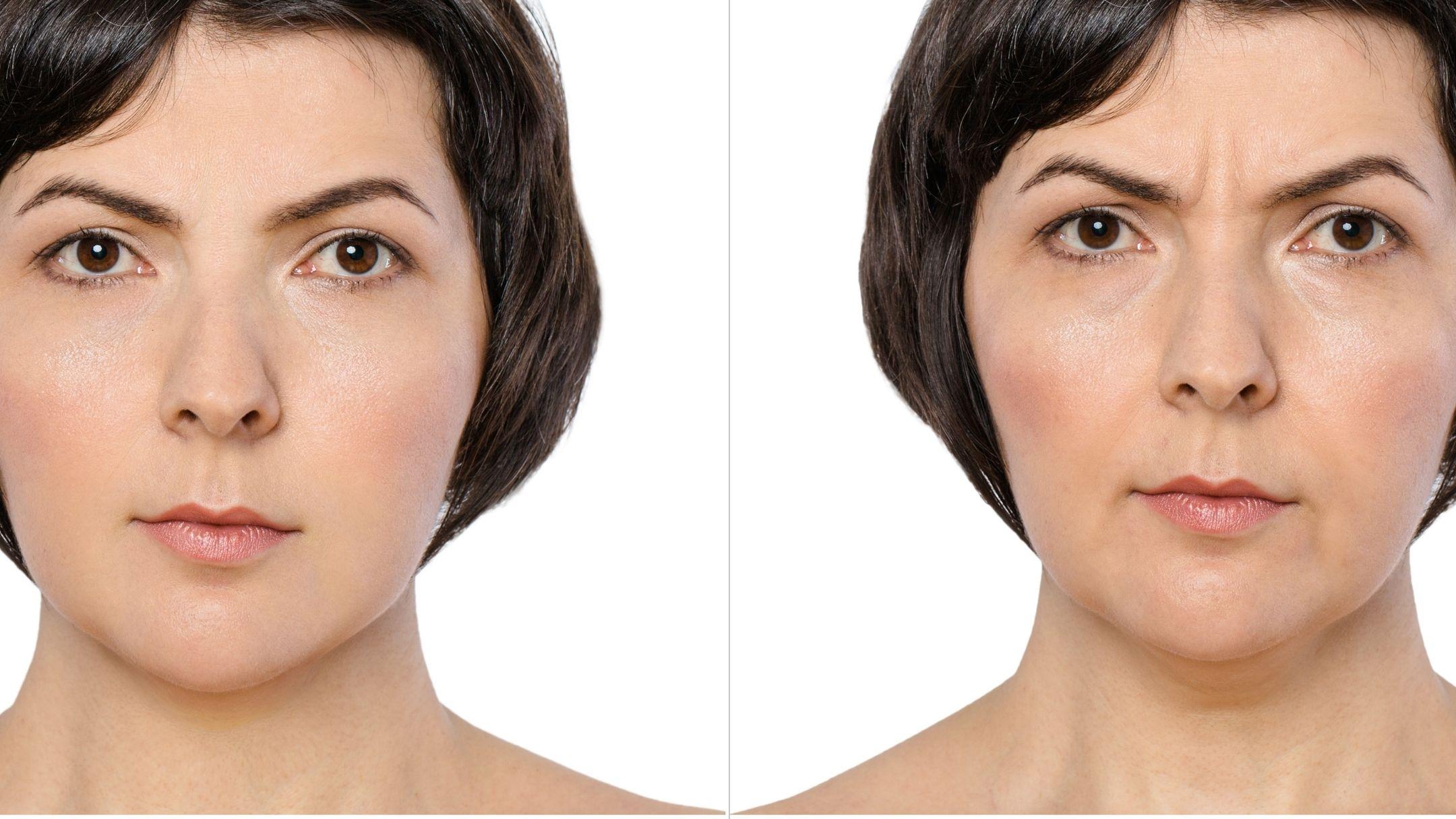 Žena před a po stárnutí pleti, vrásky