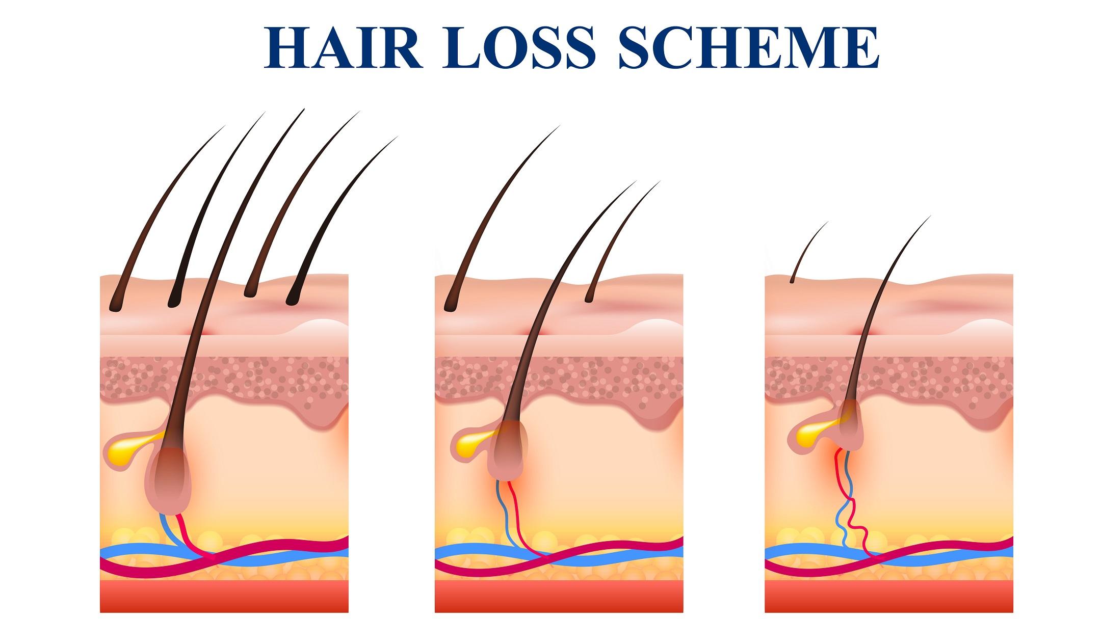 Schéma padání vlasů